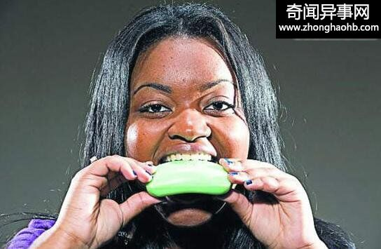 十个异食癖患者,18岁女孩胃中取出十斤重头发